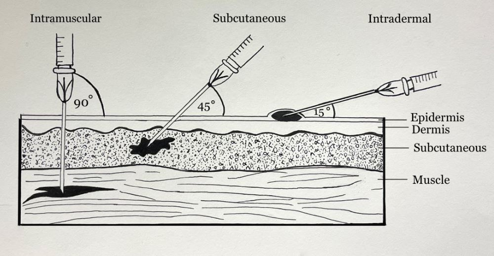 Routes of Injection